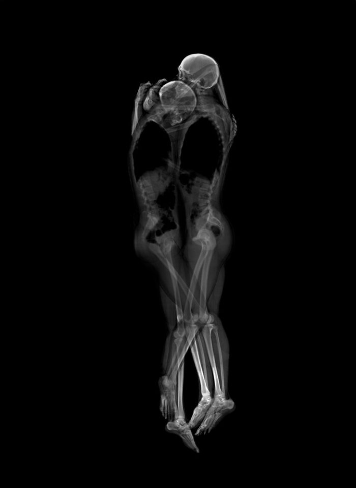 x-rayportrait3
